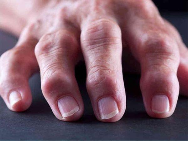 Признак полиартрита – воспаление сразу нескольких суставов