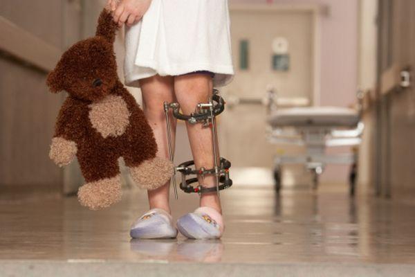 С лечение артрита у детей нельзя затягивать