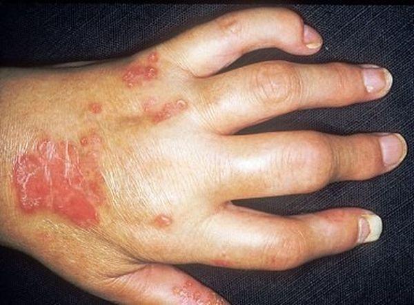 Псориатический артрит развивается на фоне псориаза