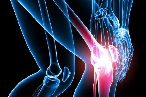 Лечение суставов от артрита подбирается сугубо индивидуальное