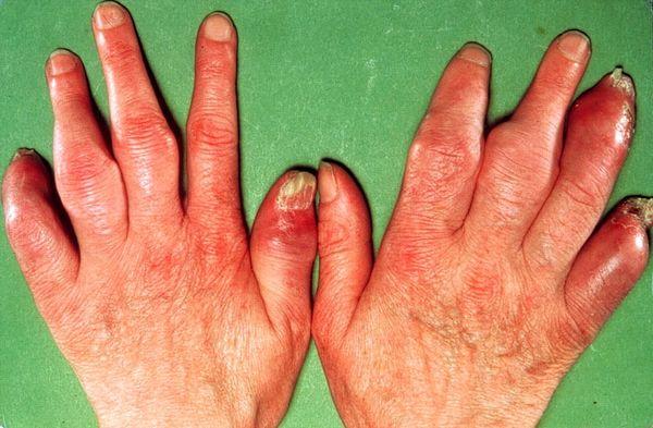 Вылечить псориатический артриточень сложно
