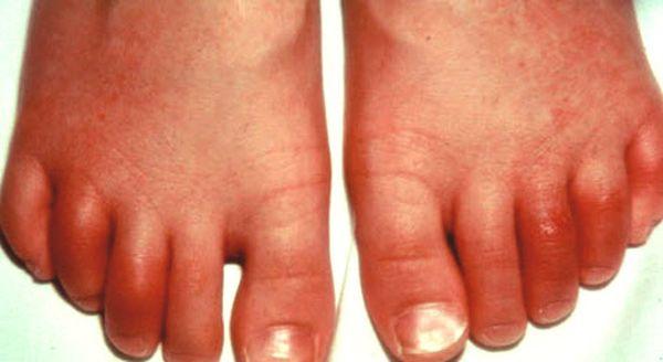 Реактивный артрит - аутоиммунное заболевание