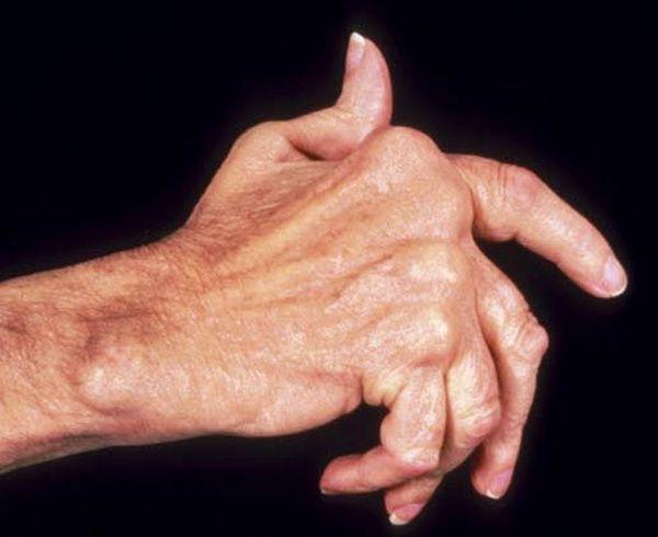 Симптомы и лечение полиартрита взаимосвязаны