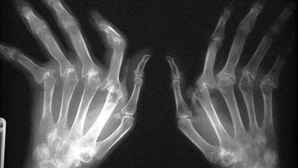 Симптомы реактивного артрита появляются не сразу