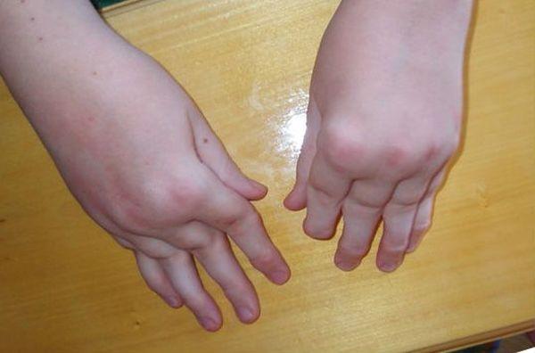 Артриты у детеймогут провоцировать различные состояния