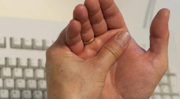 Боли в суставах - повод обратиться к ревматологу