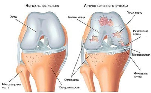 Артрит поражает и другие группы костей