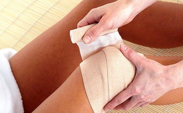 Лечения артрита колена зависит от тяжести заболевания
