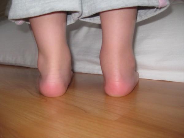 Ювенильный ревматоидный артрит лечится довольно-таки хорошо