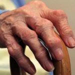 Ревматоидный полиартрит является хроническим заболеванием