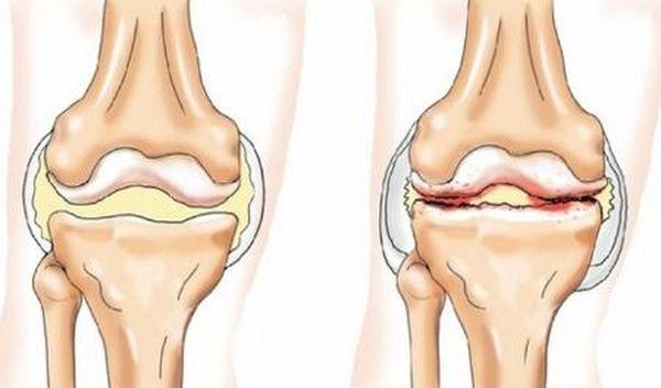 Лечение остеоартрита начинают после постановки диагноза