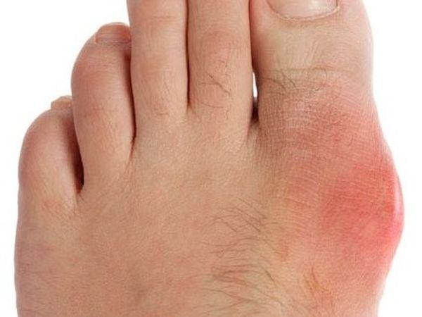 Подагрический артритможет вызываться несколькими факторами