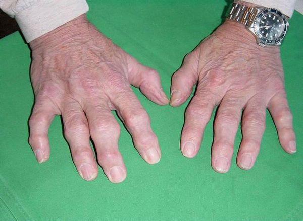 Известно несколько видов полиартрита