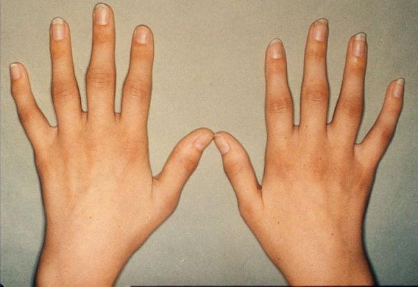 Ревматоидный артрит - самая распространенная форма артрита