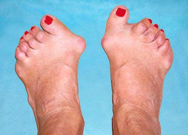 Ревматоидный полиартрит – хронический недуг, поражающий суставы