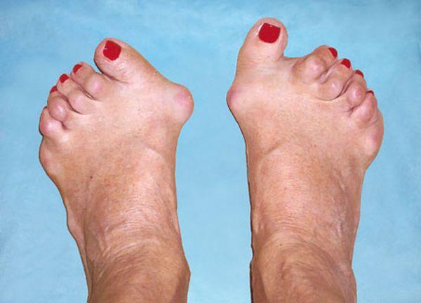 Артрит суставов может быть вызван различными инфекциями