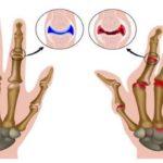 Полиартрит инфекционныйсопровождается воспалением суставов