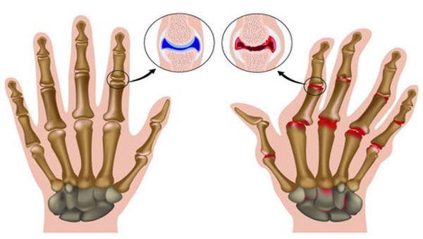Полиартрит суставов Болезни суставов причины симптомы и лечение
