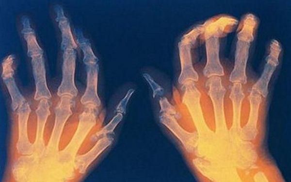Перед лечением полиартрита необходимо поставить правильный диагноз