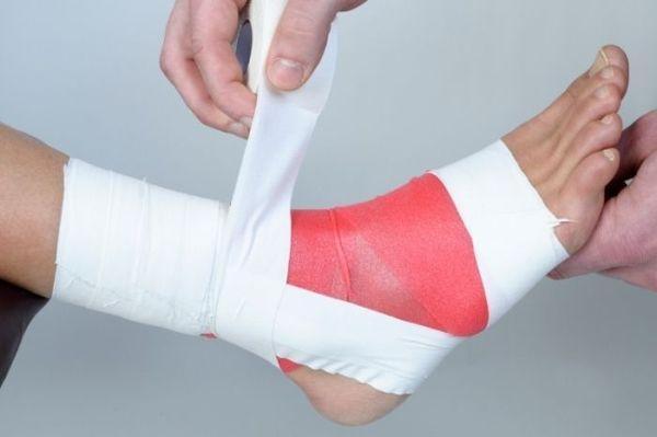 Посттравматический артрит голеностопного сустава