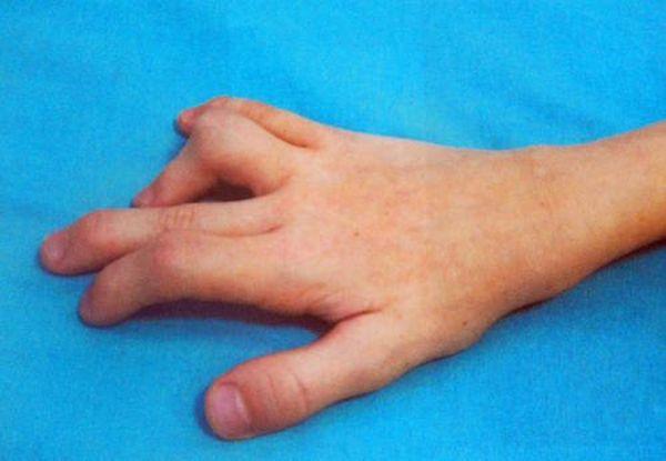 Проявление реактивного артрита у детей
