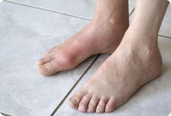 Артрит голеностопа представляет собой воспаление сустава