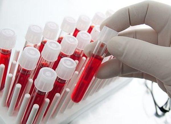 Анализ крови при ревматоидном артрите является наиболее информативным