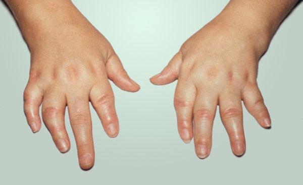 Нестероидные препараты не вылечат ревматоидный артрит