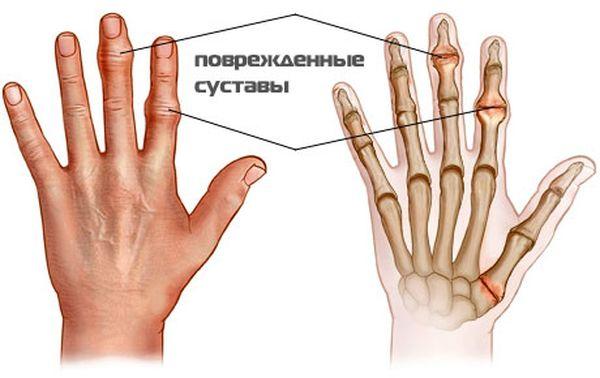Симптомы и стадии
