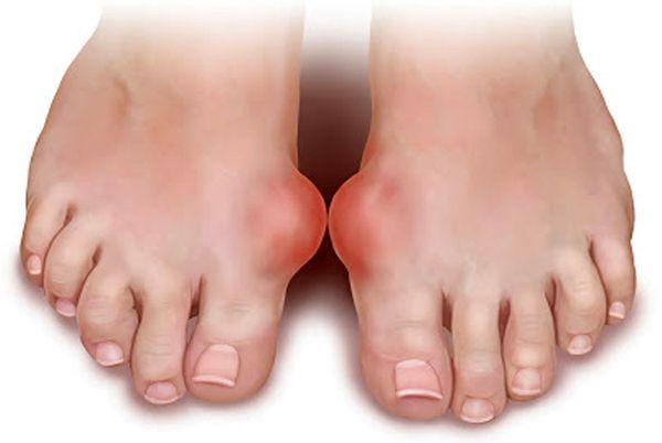 Основные симптомы артрита пальцев ног а также методы эффективного лечения
