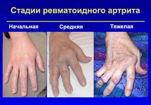 3 стадии ревматоидного артрита