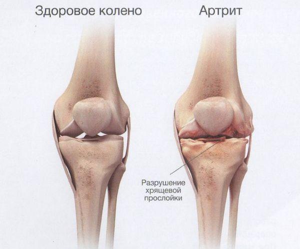Здоровое колено и пораженное артритом