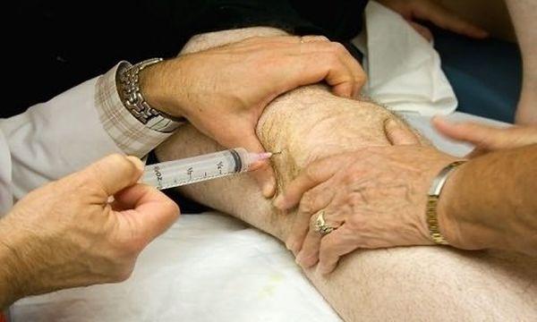 Введение глюкокортикостероидов при артрите