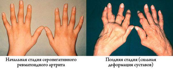 Проявление серонегативного ревматоидного артрита