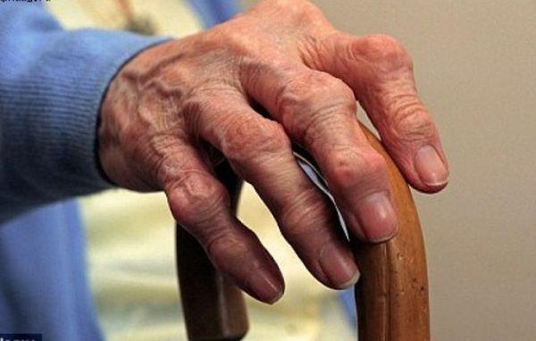 Как определить признаки артрита на ранней стадии
