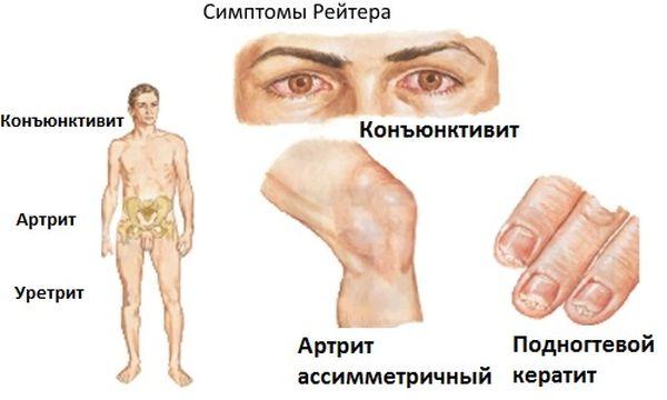 Симптоматика заболевания Рейтера