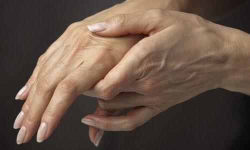 Артрит кистей рук клиническая картина и методы лечения