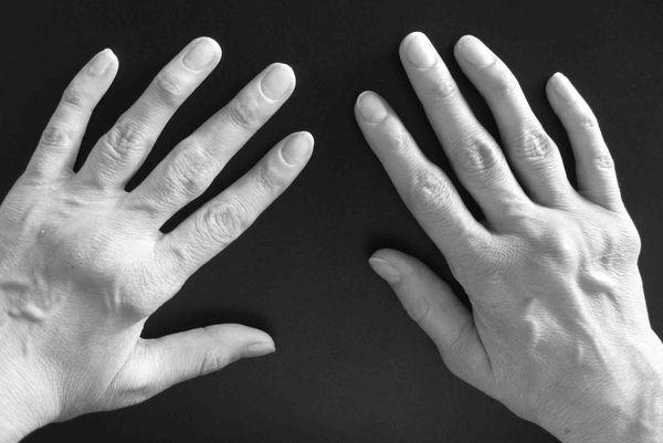 Серонегативный спондилоартрит: особенности лечения
