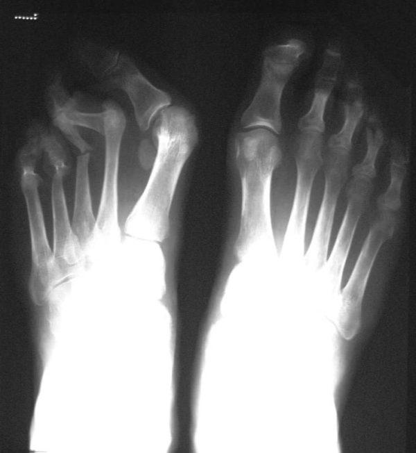 Для диагностики назначают ренгтгенографию
