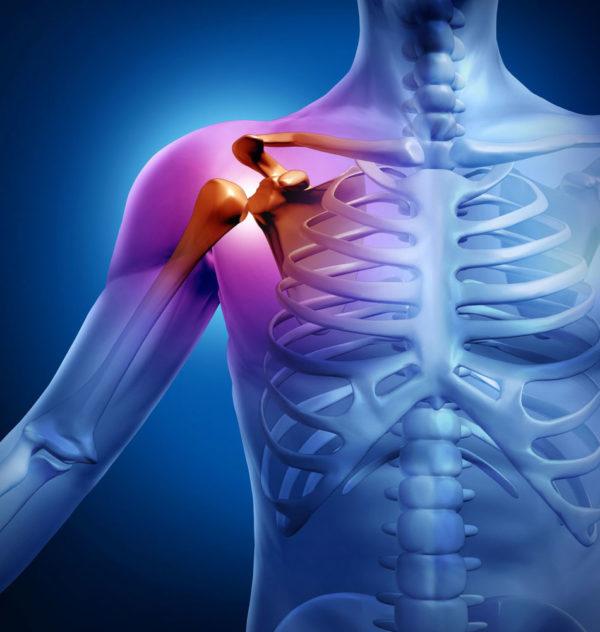 Периартрит плечевого сустава симптомы и лечение