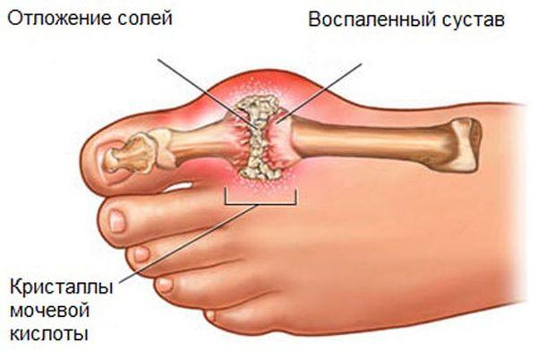 Подагра - это хроническое заболевание