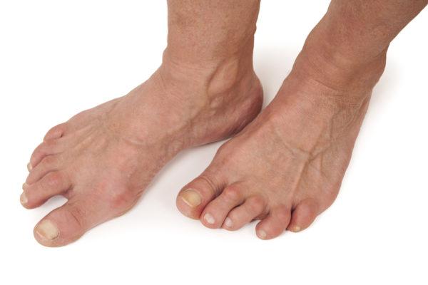Ревматоидный артрит вызывает деформацию стопы
