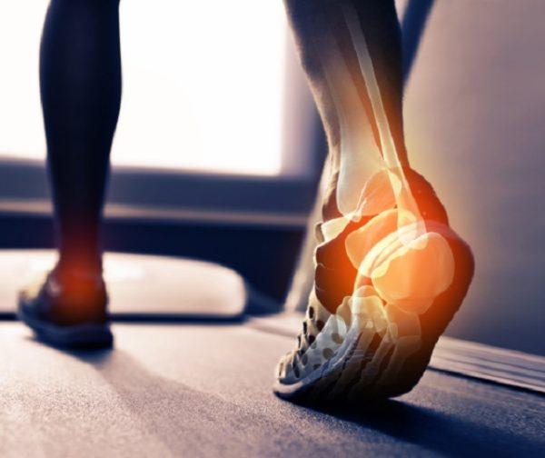 Вполне вероятно, что у больного может измениться походка