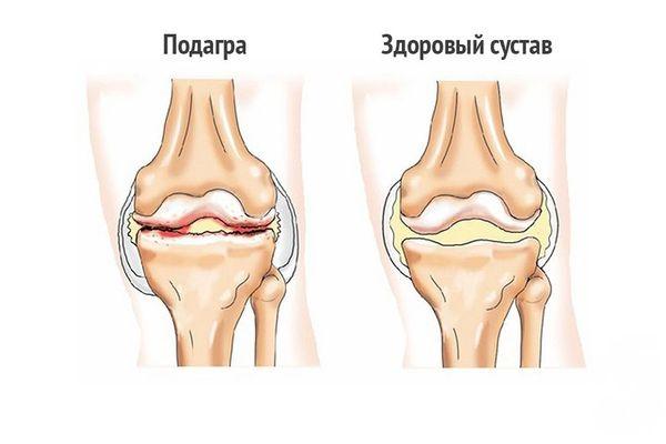 Здоровый сустав и пораженный подагрой