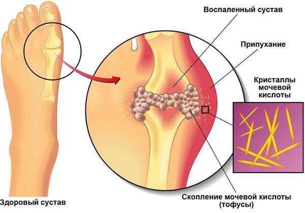 Артроз – одно из самых распространенных заболеваний современности