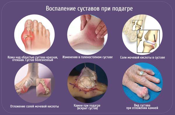 Воспаление суставов при подагре