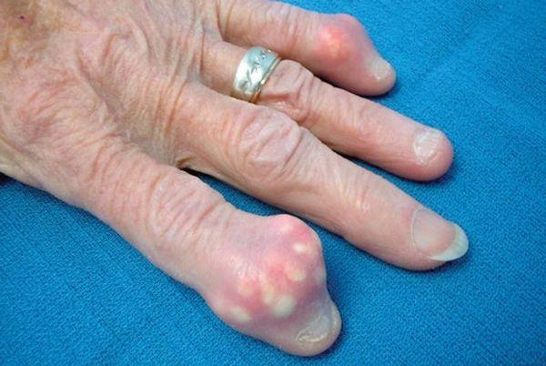 Подагре чаще всего подвержены пожилые люди