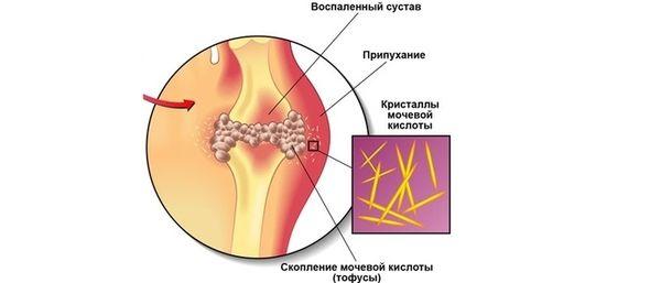 Воспаление сустава при подагре