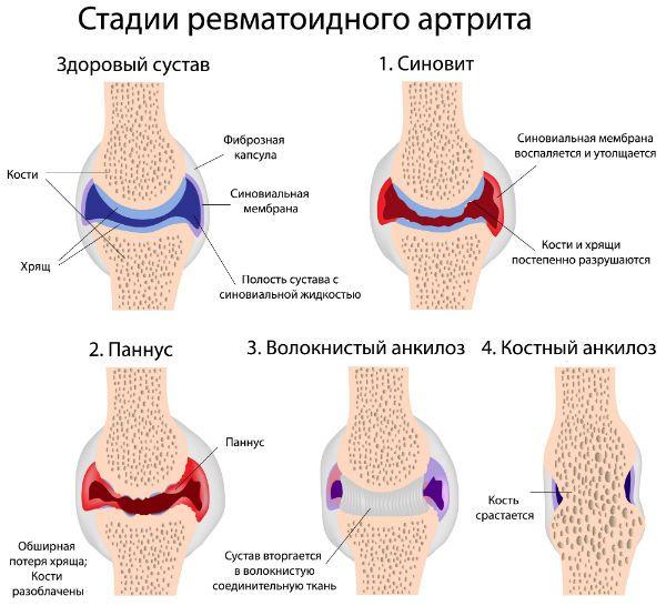 Влияние болезни на сустав