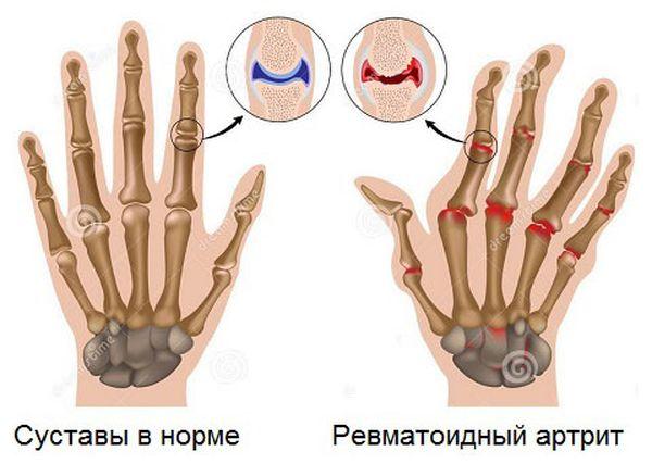 Суставы в норме и ревматоидный артрит